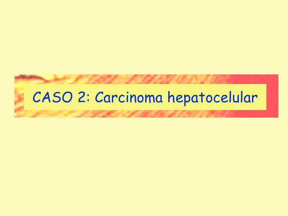CASO 2: Carcinoma hepatocelular