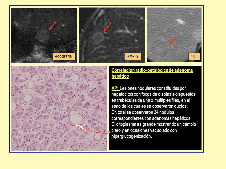 Correlación radio-patológica de adenoma hepático AP: Lesiones nodulares constituídas por hepatocitos con focos de displasia dispuestos en trabéculas de una o múltiples filas, en el seno de los cuales se observaron ductos.
