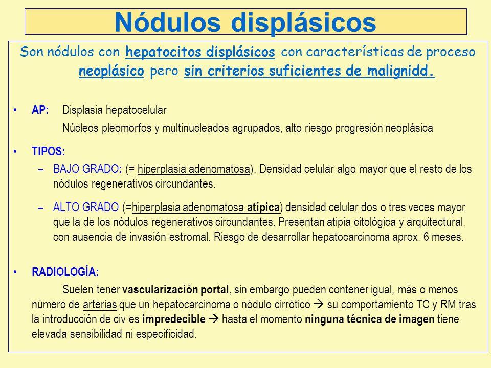 Nódulos displásicos Son nódulos con hepatocitos displásicos con características de proceso neoplásico pero sin criterios suficientes de malignidd. AP: