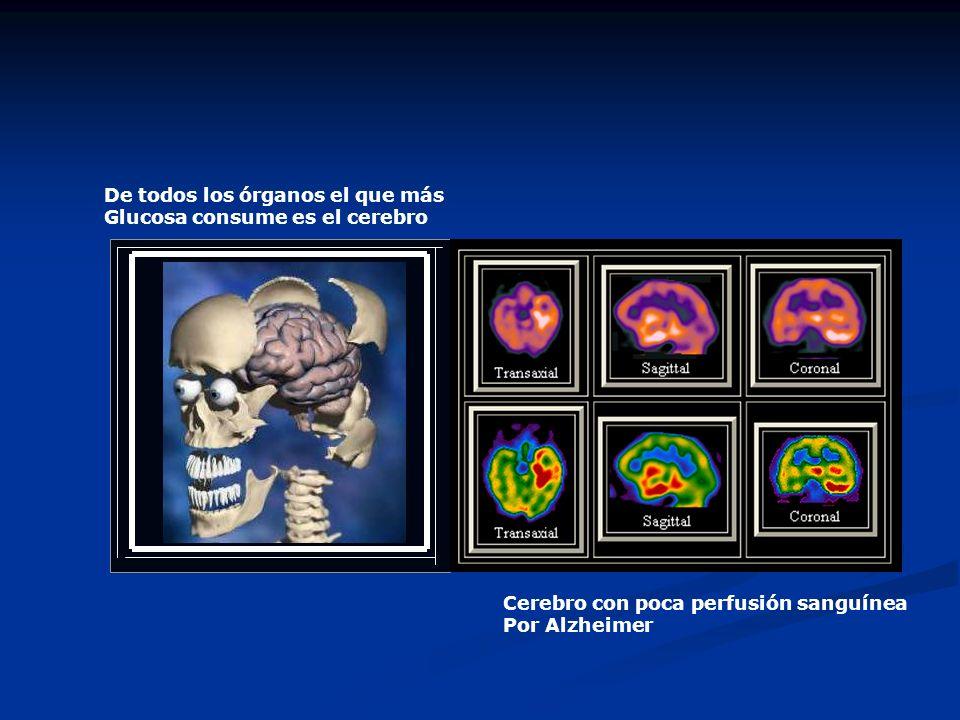 De todos los órganos el que más Glucosa consume es el cerebro Cerebro con poca perfusión sanguínea Por Alzheimer