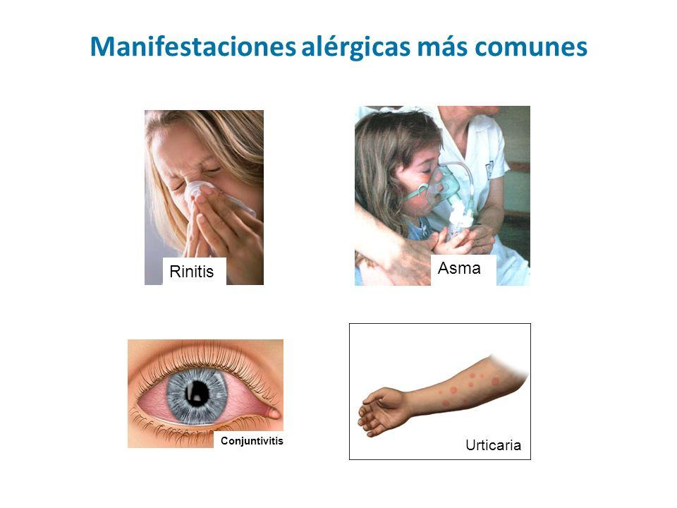 Venezuela: 91% Brasil 95% Cartagena, Colombia: 80.5% Cuba: 84% Singapore: 98% Canary Islands: 50 % Tampa, USA 42.8% China: 40.7% Valdivia, Chile: 72% Prevalencia de alergia a Blomia tropicalis en algunos países del trópico