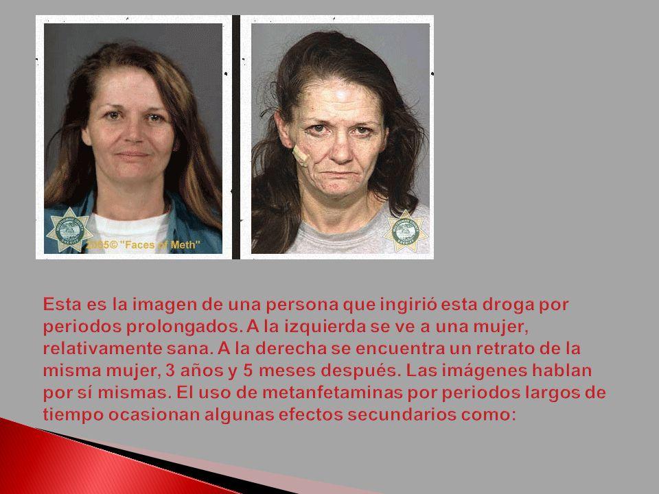 Pérdida de peso Adicción Depresión Psicosis Caída acelerada de los dientes Acné y lesiones en la piel.