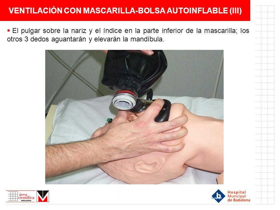 VENTILACIÓN CON MASCARILLA-BOLSA AUTOINFLABLE (III) El pulgar sobre la nariz y el índice en la parte inferior de la mascarilla; los otros 3 dedos agua
