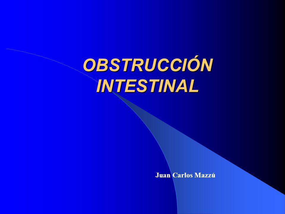 OBSTRUCCIÓN INTESTINAL Juan Carlos Mazzú