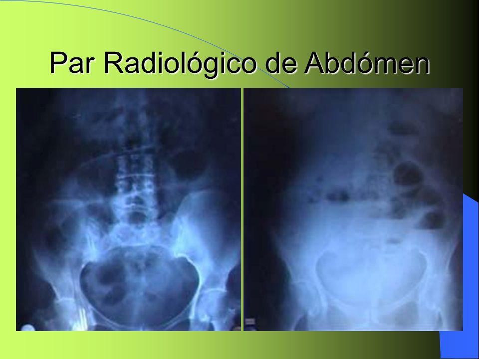 Par Radiológico de Abdómen