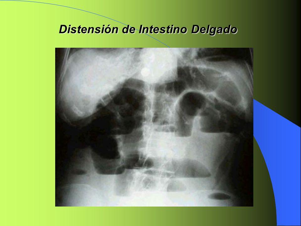 Distensión de Intestino Delgado