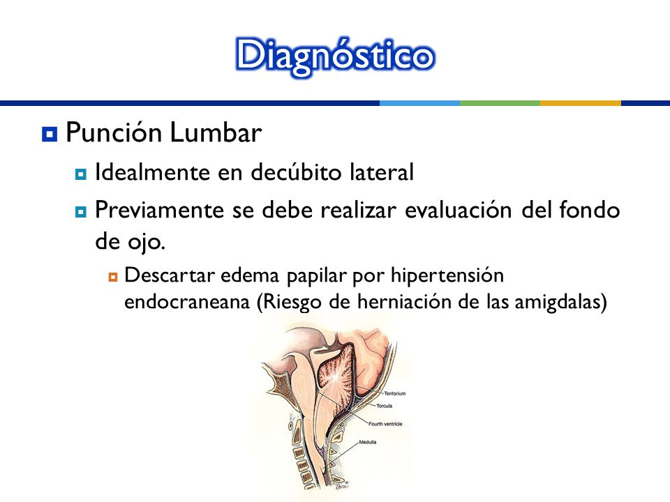 Punción Lumbar Idealmente en decúbito lateral Previamente se debe realizar evaluación del fondo de ojo. Descartar edema papilar por hipertensión endoc