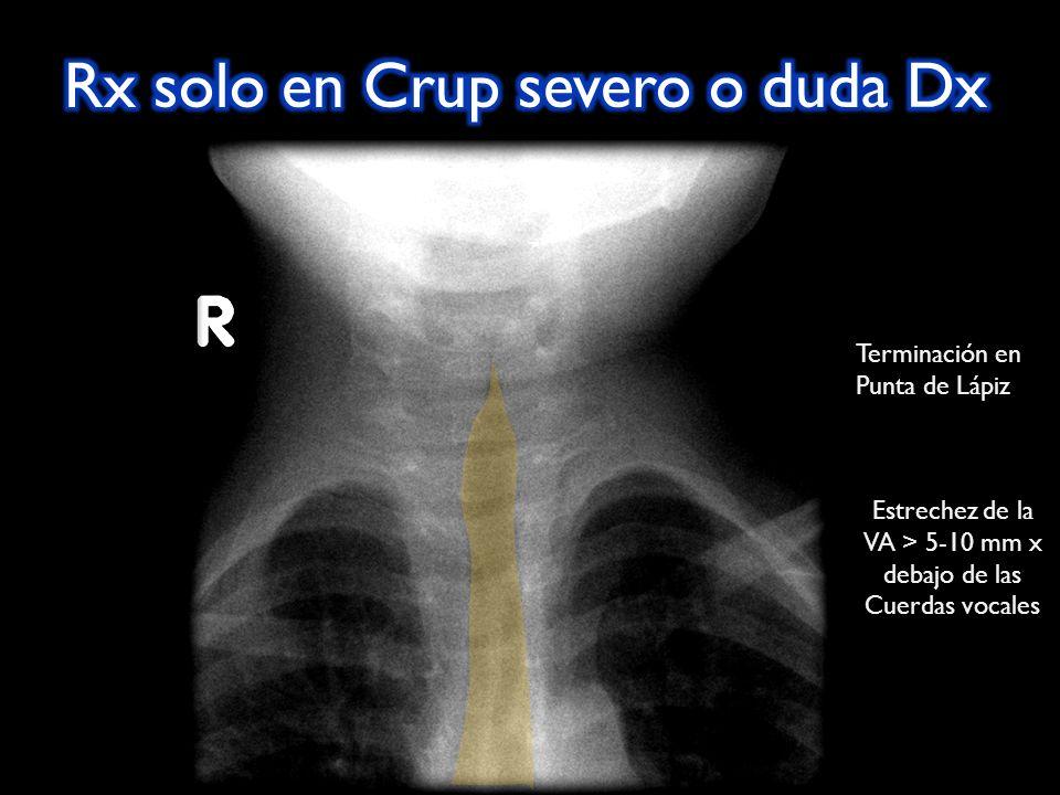 Terminación en Punta de Lápiz Estrechez de la VA > 5-10 mm x debajo de las Cuerdas vocales