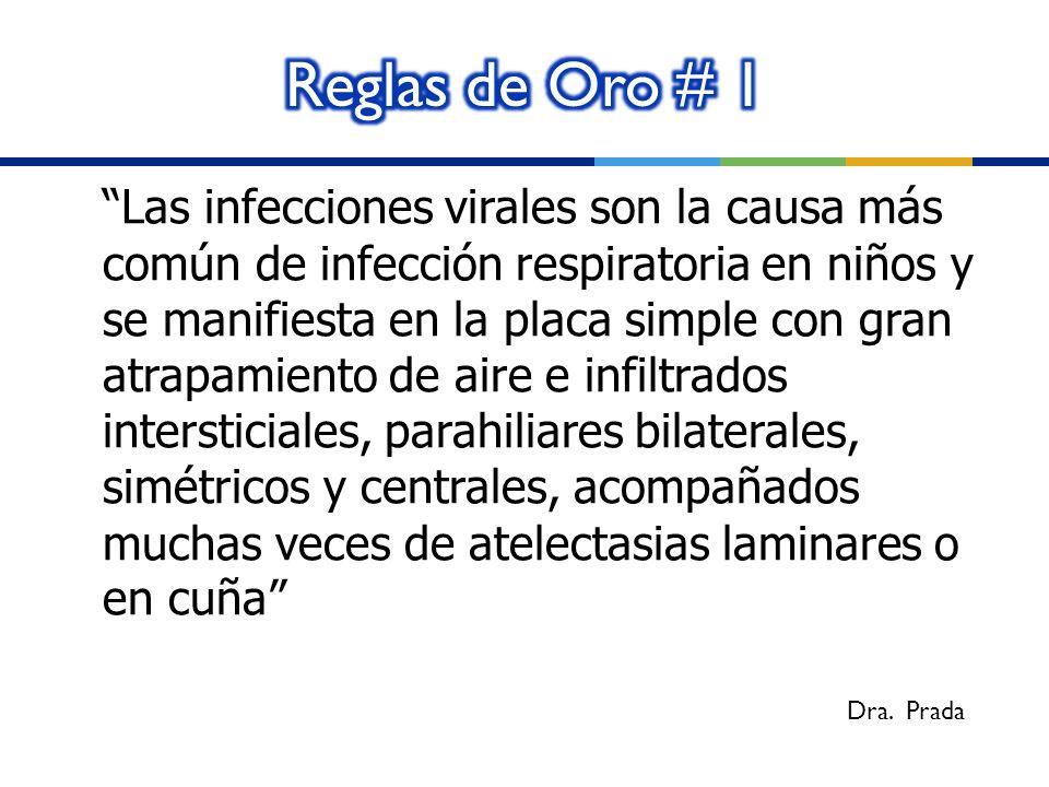 Las infecciones virales son la causa más común de infección respiratoria en niños y se manifiesta en la placa simple con gran atrapamiento de aire e i