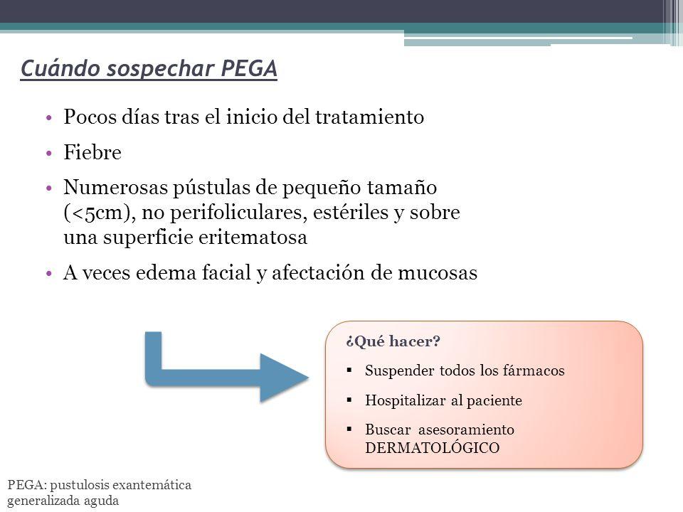 Cuándo sospechar PEGA Pocos días tras el inicio del tratamiento Fiebre Numerosas pústulas de pequeño tamaño (<5cm), no perifoliculares, estériles y so