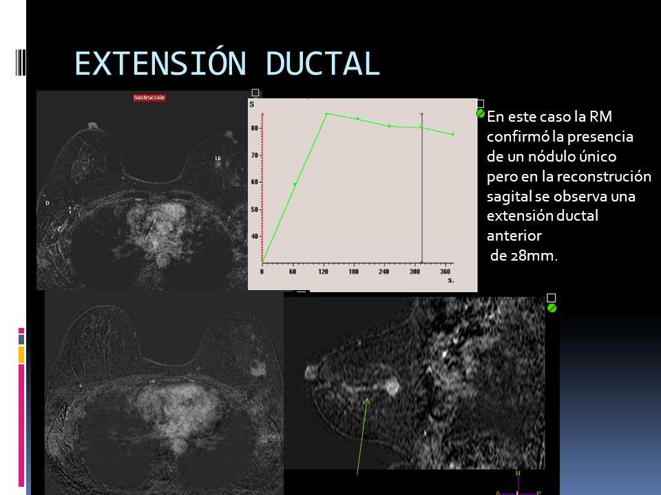 EXTENSIÓN DUCTAL En este caso la RM confirmó la presencia de un nódulo único pero en la reconstrución sagital se observa una extensión ductal anterior