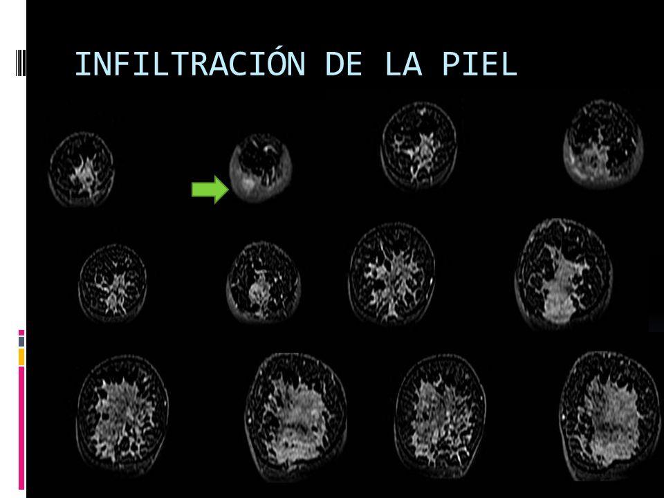 INFILTRACIÓN DE LA PIEL