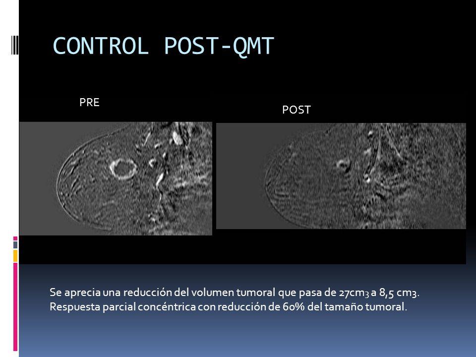 CONTROL POST-QMT PRE POST Se aprecia una reducción del volumen tumoral que pasa de 27cm 3 a 8,5 cm 3. Respuesta parcial concéntrica con reducción de 6