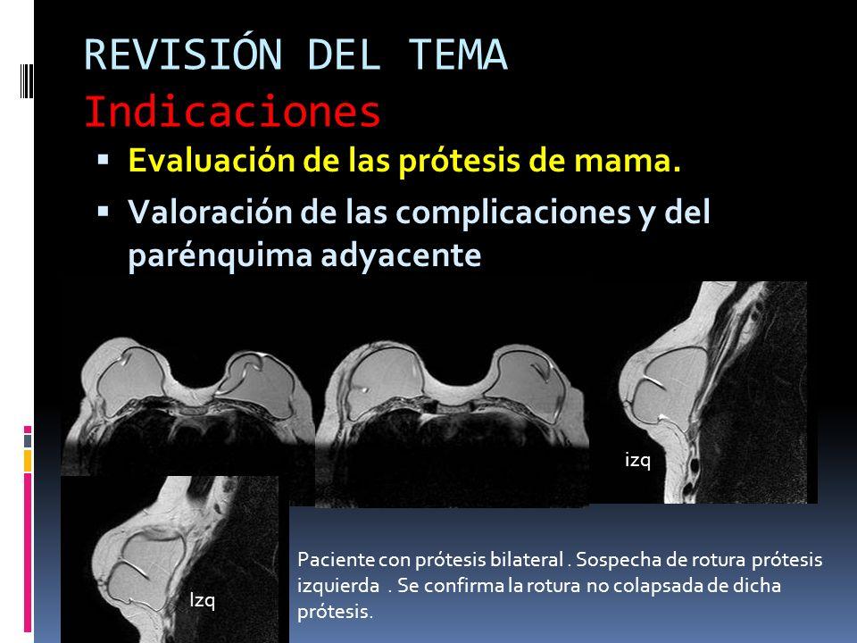 REVISIÓN DEL TEMA Indicaciones Evaluación de las prótesis de mama. Valoración de las complicaciones y del parénquima adyacente Paciente con prótesis b