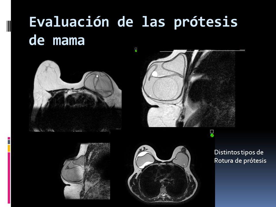 Evaluación de las prótesis de mama Distintos tipos de Rotura de prótesis