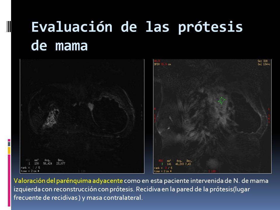 Evaluación de las prótesis de mama Valoración del parénquima adyacente como en esta paciente intervenida de N. de mama izquierda con reconstrucción co