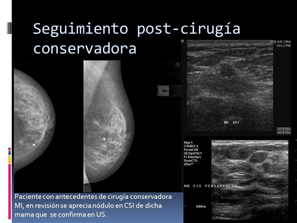 Seguimiento post-cirugía conservadora Paciente con antecedentes de cirugía conservadora MI, en revisión se aprecia nódulo en CSI de dicha mama que se