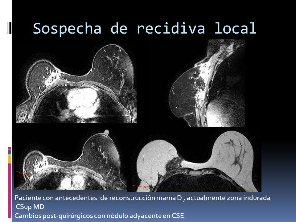 Sospecha de recidiva local Paciente con antecedentes. de reconstrucción mama D, actualmente zona indurada CSup MD. Cambios post-quirúrgicos con nódulo