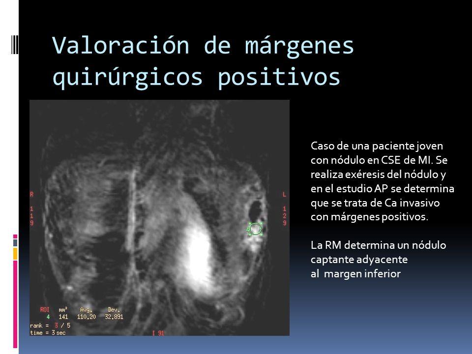 Valoración de márgenes quirúrgicos positivos Caso de una paciente joven con nódulo en CSE de MI. Se realiza exéresis del nódulo y en el estudio AP se