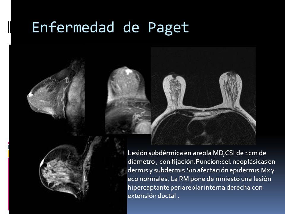 Enfermedad de Paget Lesión subdérmica en areola MD,CSI de 1cm de diámetro, con fijación.Punción:cel. neoplásicas en dermis y subdermis.Sin afectación