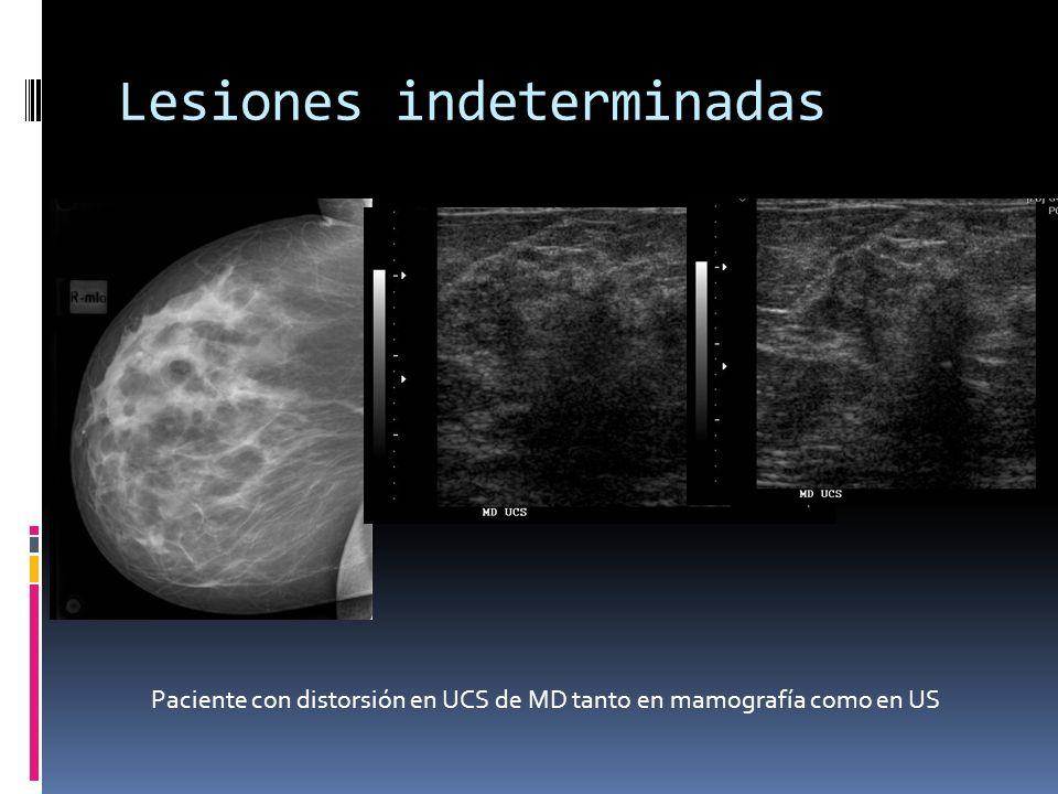 Lesiones indeterminadas Paciente con distorsión en UCS de MD tanto en mamografía como en US