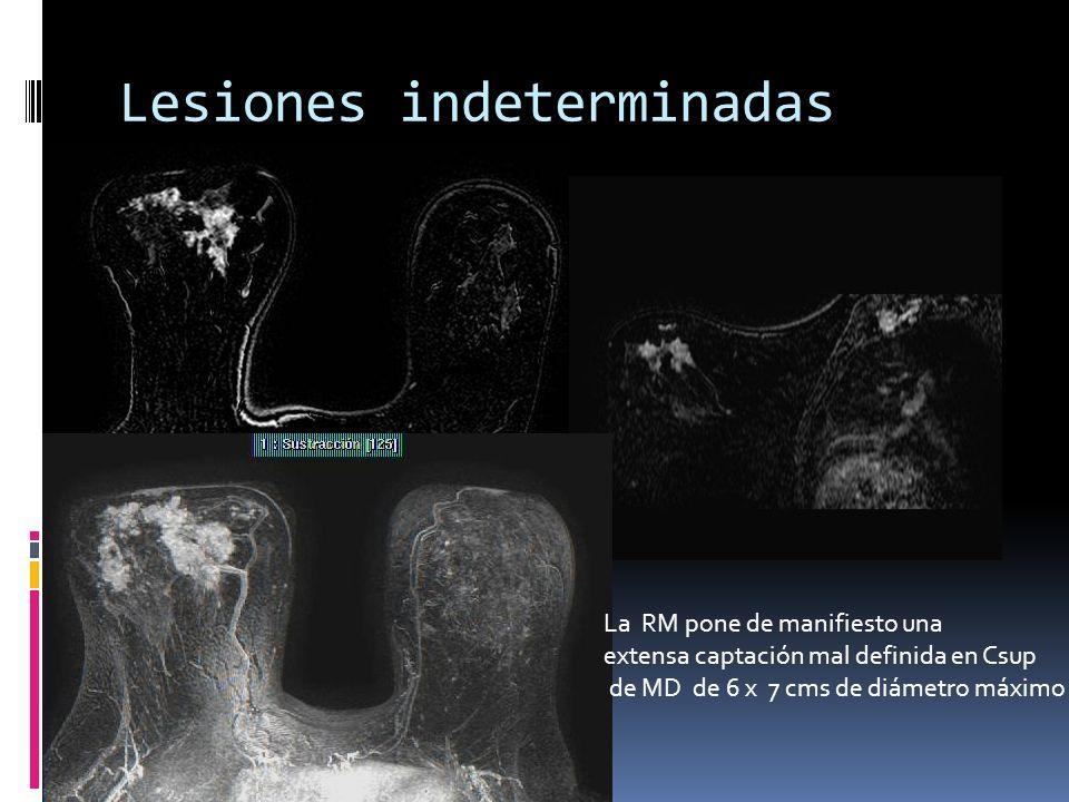 Lesiones indeterminadas La RM pone de manifiesto una extensa captación mal definida en Csup de MD de 6 x 7 cms de diámetro máximo