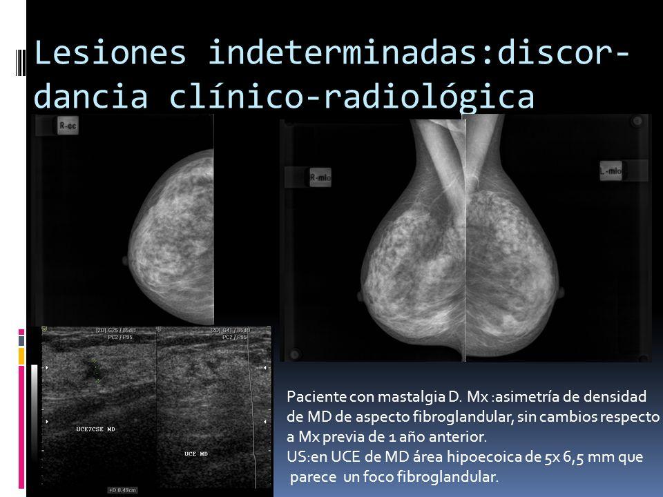 Lesiones indeterminadas:discor- dancia clínico-radiológica Paciente con mastalgia D. Mx :asimetría de densidad de MD de aspecto fibroglandular, sin ca