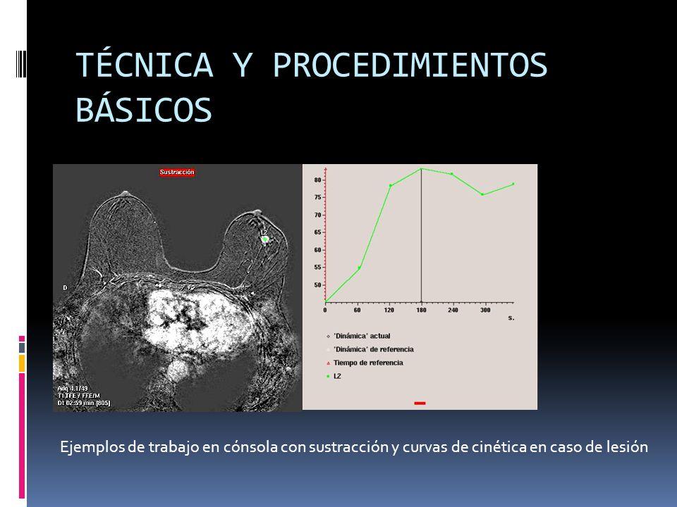 TÉCNICA Y PROCEDIMIENTOS BÁSICOS Ejemplos de trabajo en cónsola con sustracción y curvas de cinética en caso de lesión