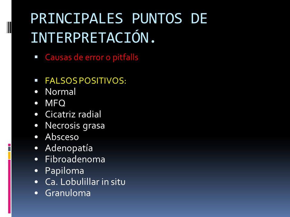 PRINCIPALES PUNTOS DE INTERPRETACIÓN. Causas de error o pitfalls FALSOS POSITIVOS: Normal MFQ Cicatriz radial Necrosis grasa Absceso Adenopatía Fibroa