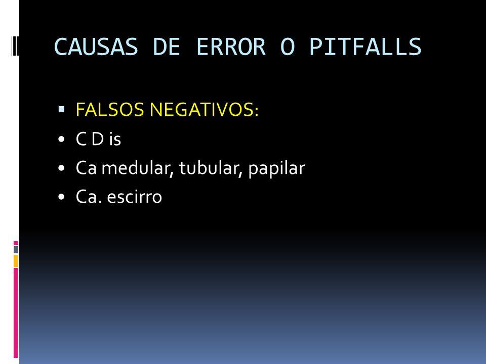CAUSAS DE ERROR O PITFALLS FALSOS NEGATIVOS: C D is Ca medular, tubular, papilar Ca. escirro