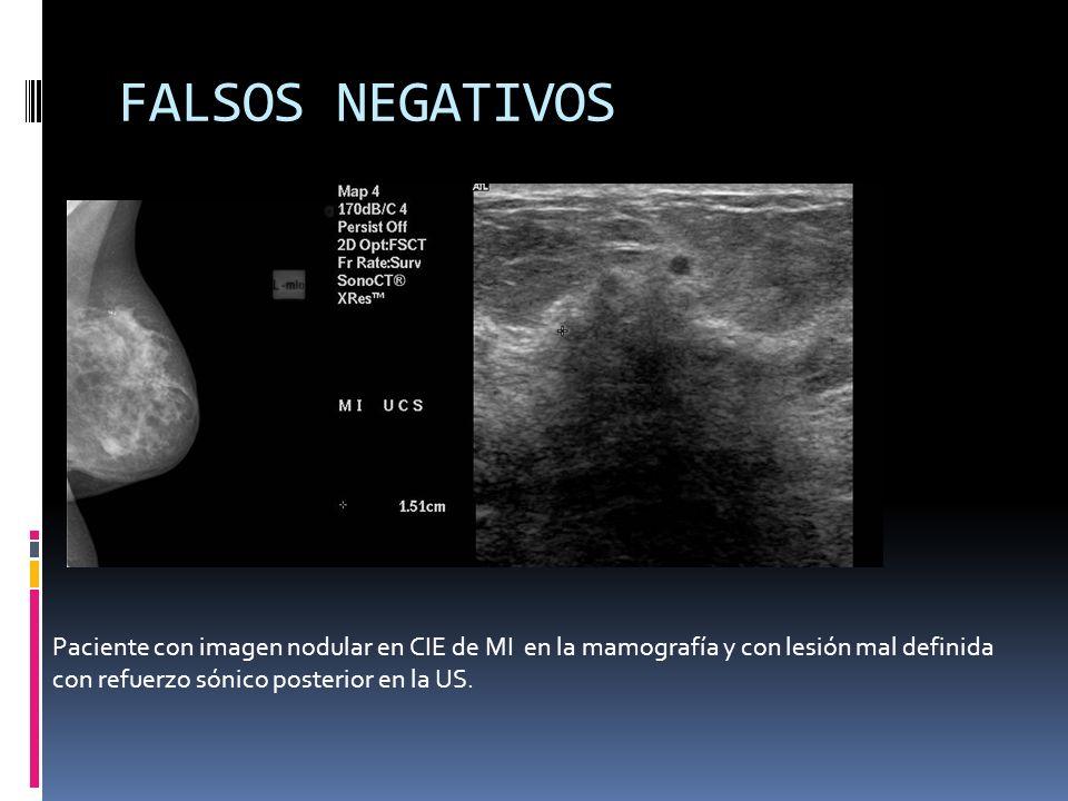 FALSOS NEGATIVOS Paciente con imagen nodular en CIE de MI en la mamografía y con lesión mal definida con refuerzo sónico posterior en la US.