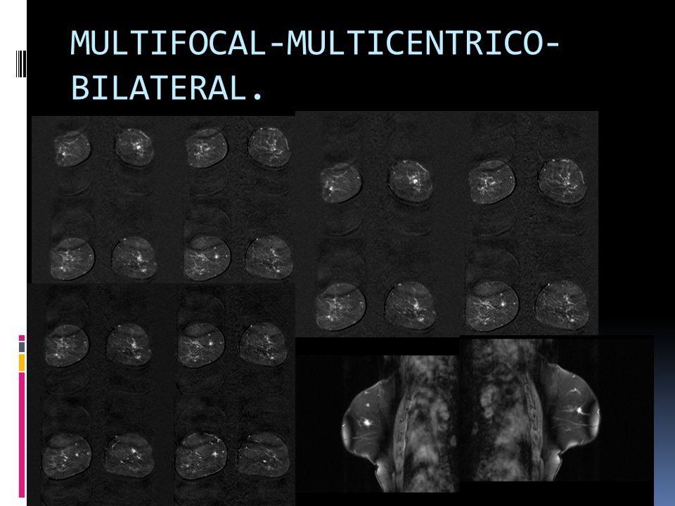 MULTIFOCAL-MULTICENTRICO- BILATERAL.