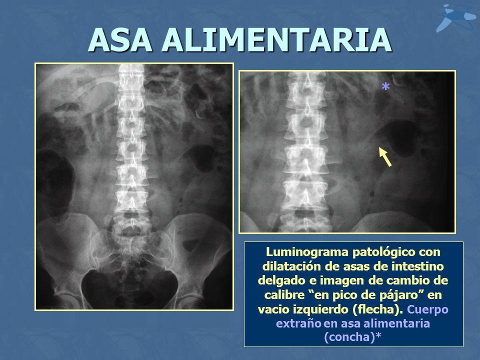 ASA ALIMENTARIA Luminograma patológico con dilatación de asas de intestino delgado e imagen de cambio de calibre en pico de pájaro en vacio izquierdo (flecha).