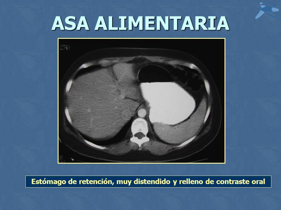 ASA ALIMENTARIA Estómago de retención, muy distendido y relleno de contraste oral