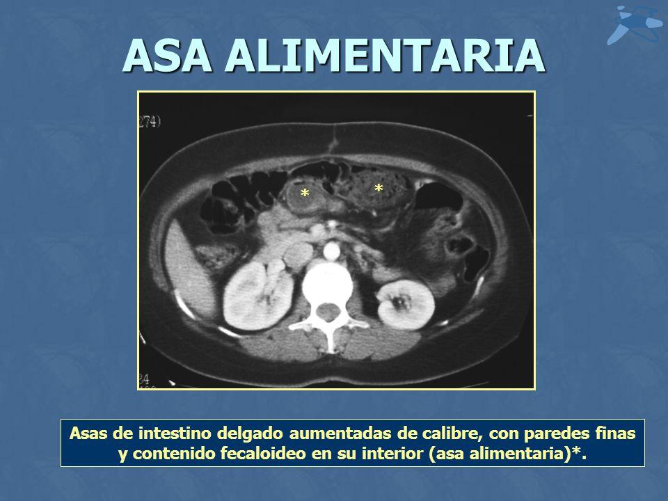 ASA ALIMENTARIA Asas de intestino delgado aumentadas de calibre, con paredes finas y contenido fecaloideo en su interior (asa alimentaria)*. * *