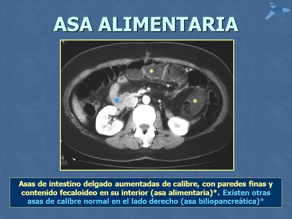 ASA ALIMENTARIA Asas de intestino delgado aumentadas de calibre, con paredes finas y contenido fecaloideo en su interior (asa alimentaria)*. Existen o