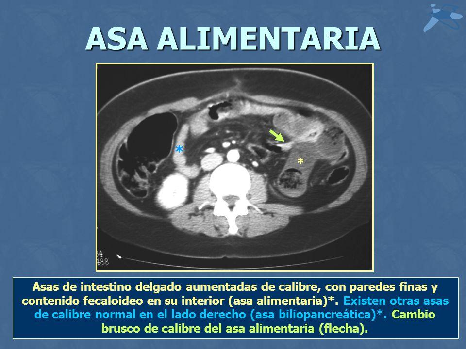 ASA ALIMENTARIA * * Asas de intestino delgado aumentadas de calibre, con paredes finas y contenido fecaloideo en su interior (asa alimentaria)*.