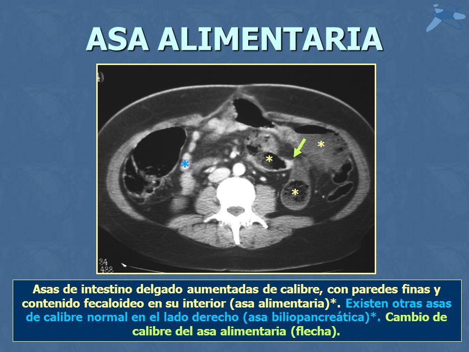 ASA ALIMENTARIA * * * * Asas de intestino delgado aumentadas de calibre, con paredes finas y contenido fecaloideo en su interior (asa alimentaria)*.