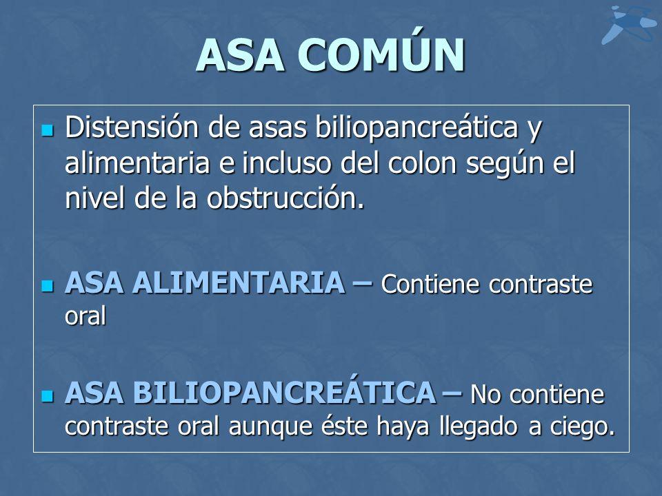 ASA COMÚN Distensión de asas biliopancreática y alimentaria e incluso del colon según el nivel de la obstrucción. Distensión de asas biliopancreática