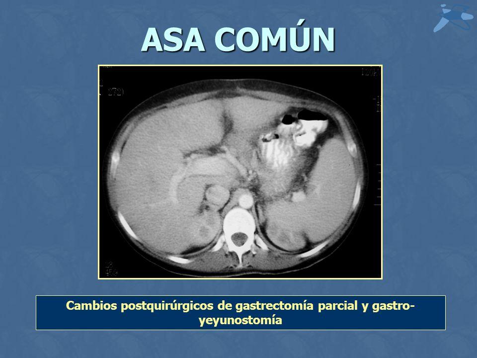 ASA COMÚN Cambios postquirúrgicos de gastrectomía parcial y gastro- yeyunostomía