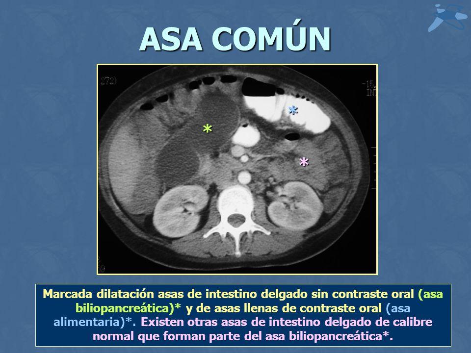 ASA COMÚN * * Marcada dilatación asas de intestino delgado sin contraste oral (asa biliopancreática)* y de asas llenas de contraste oral (asa alimentaria)*.