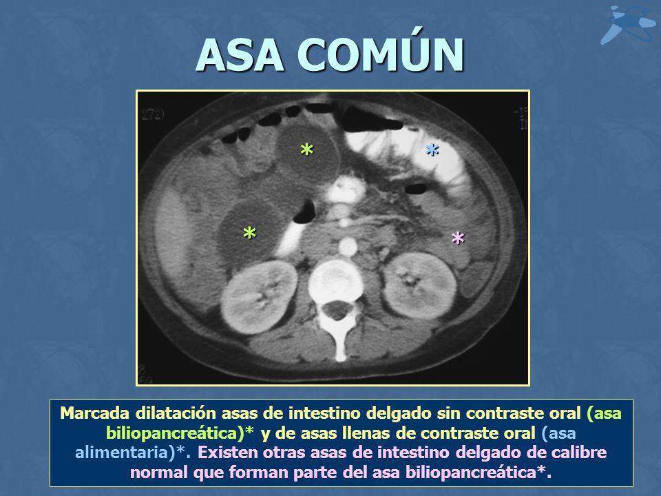 ASA COMÚN * * * * Marcada dilatación asas de intestino delgado sin contraste oral (asa biliopancreática)* y de asas llenas de contraste oral (asa alimentaria)*.