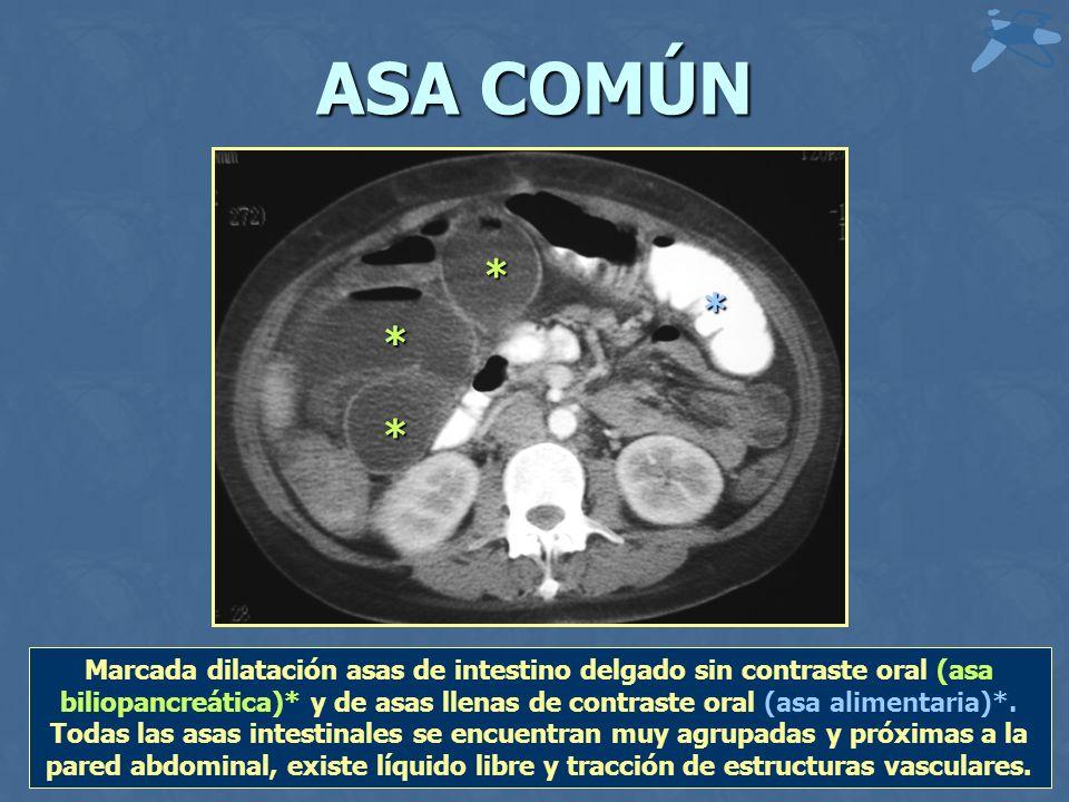 ASA COMÚN * * * * Marcada dilatación asas de intestino delgado sin contraste oral (asa biliopancreática)* y de asas llenas de contraste oral (asa alim