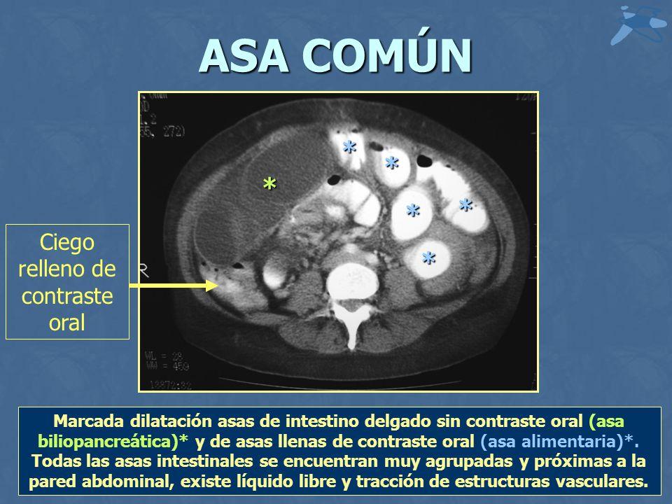 ASA COMÚN * * * * * * Marcada dilatación asas de intestino delgado sin contraste oral (asa biliopancreática)* y de asas llenas de contraste oral (asa alimentaria)*.