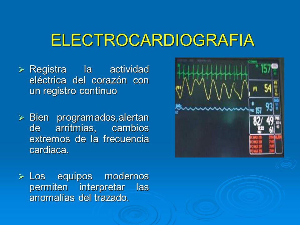 ELECTROCARDIOGRAFIA ELECTROCARDIOGRAFIA Registra la actividad eléctrica del corazón con un registro continuo Registra la actividad eléctrica del coraz