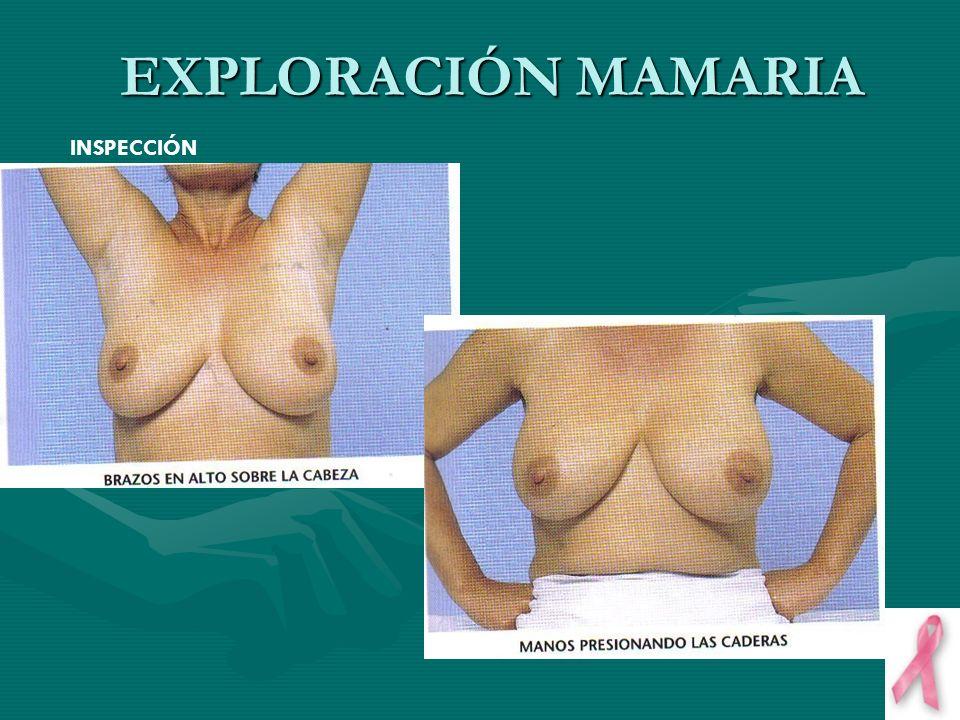 EXPLORACIÓN MAMARIA INSPECCIÓN