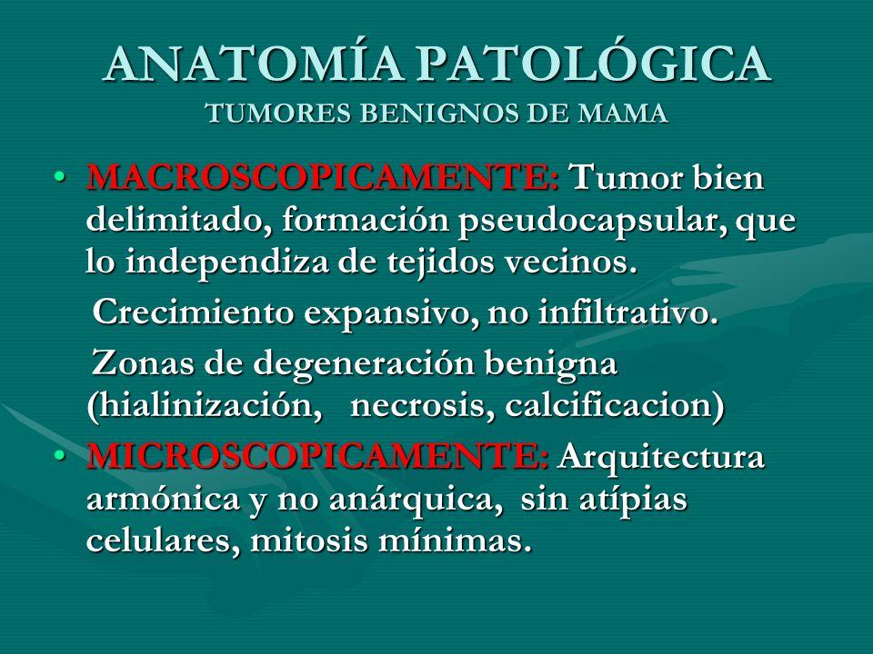 ANATOMÍA PATOLÓGICA TUMORES BENIGNOS DE MAMA MACROSCOPICAMENTE: Tumor bien delimitado, formación pseudocapsular, que lo independiza de tejidos vecinos