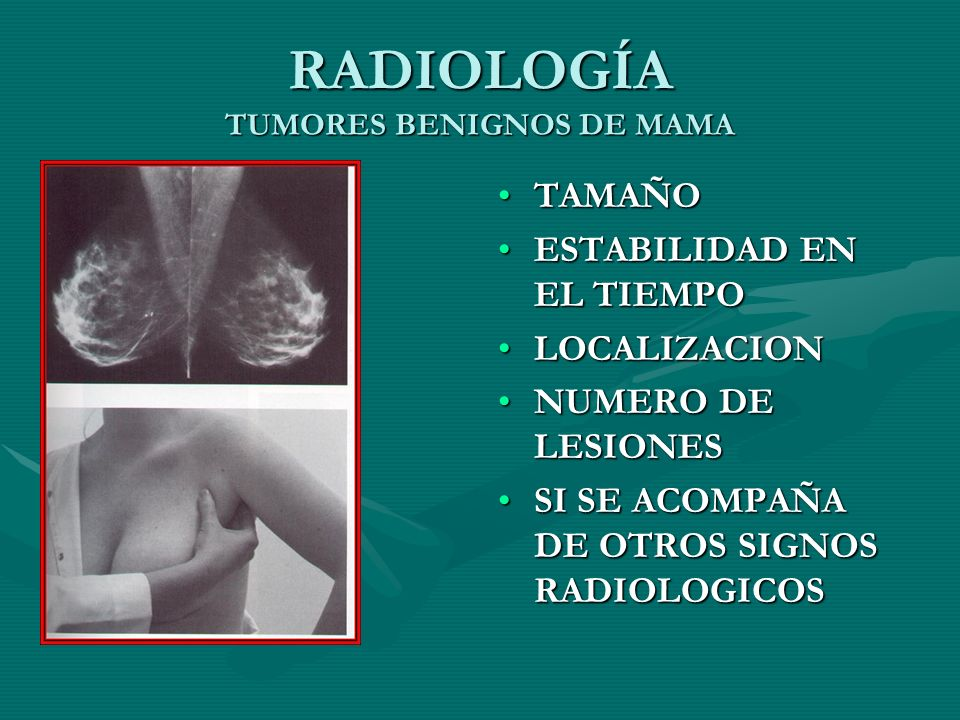 RADIOLOGÍA TUMORES BENIGNOS DE MAMA TAMAÑO ESTABILIDAD EN EL TIEMPO LOCALIZACION NUMERO DE LESIONES SI SE ACOMPAÑA DE OTROS SIGNOS RADIOLOGICOS