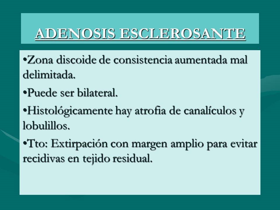 ADENOSIS ESCLEROSANTE Zona discoide de consistencia aumentada mal delimitada. Puede ser bilateral. Histológicamente hay atrofia de canalículos y lobul