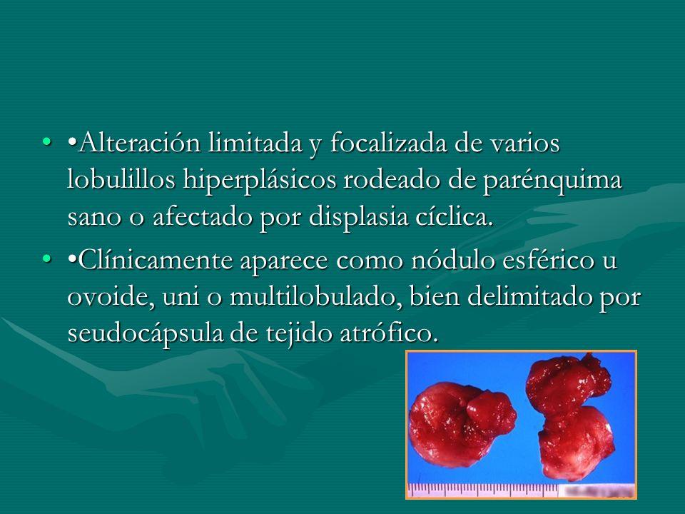 Alteración limitada y focalizada de varios lobulillos hiperplásicos rodeado de parénquima sano o afectado por displasia cíclica.Alteración limitada y